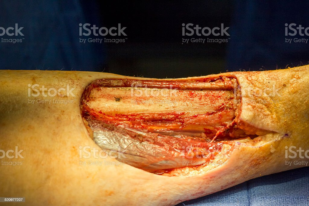 Lower extremity malignant fungating tumor series , Three of Five stock photo