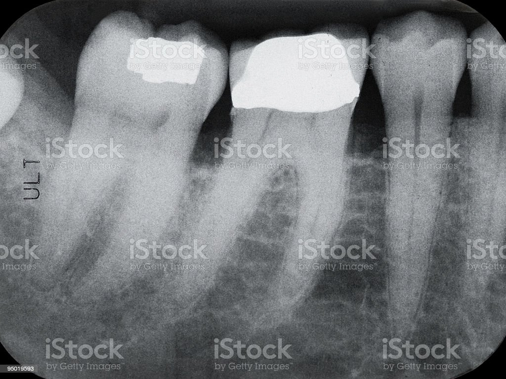 Lower Left Periodontal X-rays stock photo