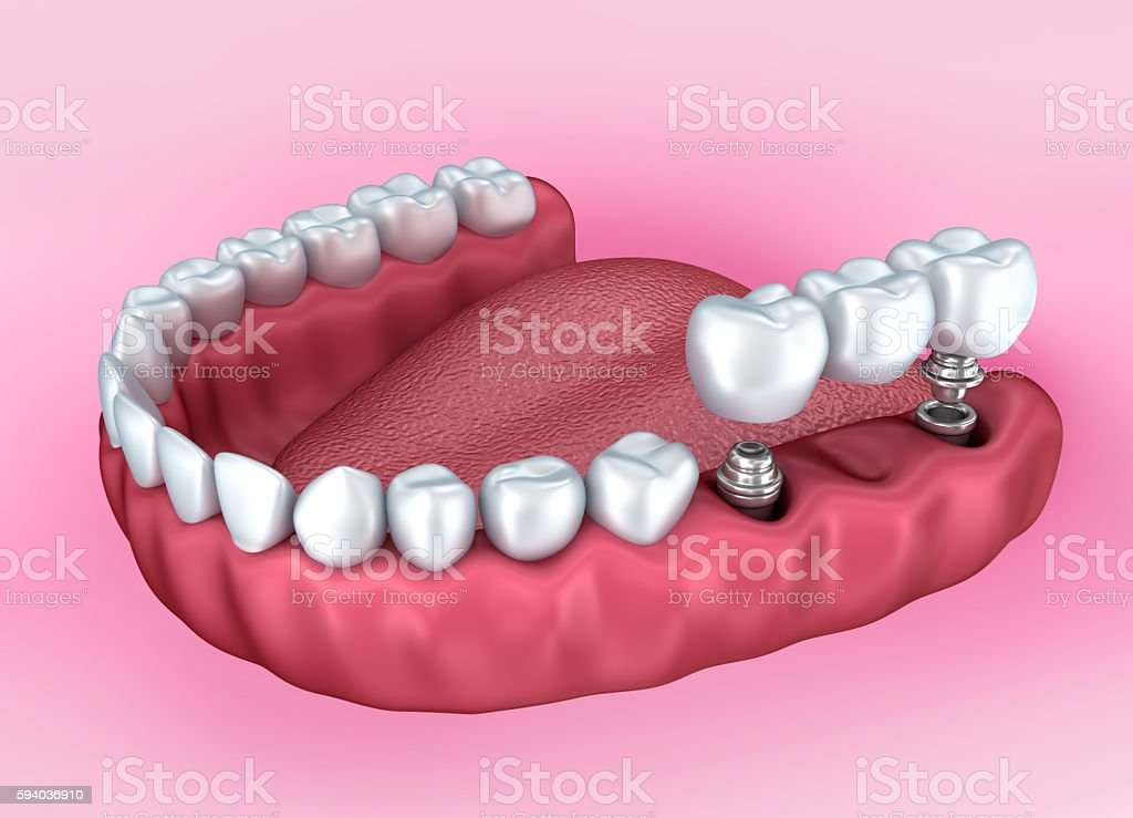 Lower teeth and dental implant isolated on white . stock photo