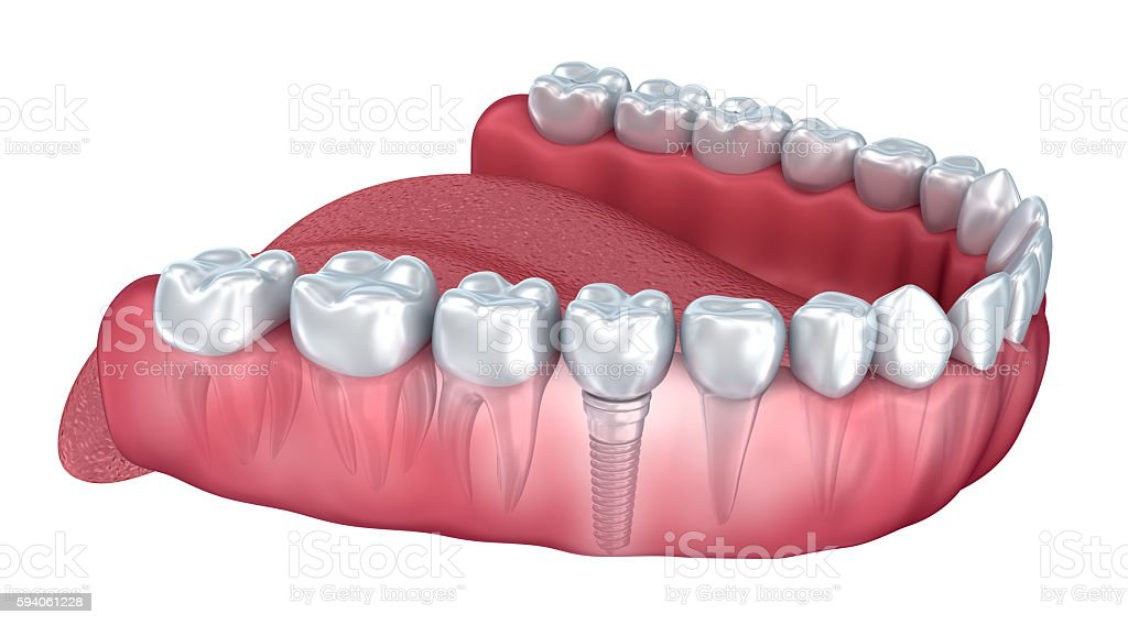 Lower teeth and dental implant transparent render isolated on white . stock photo