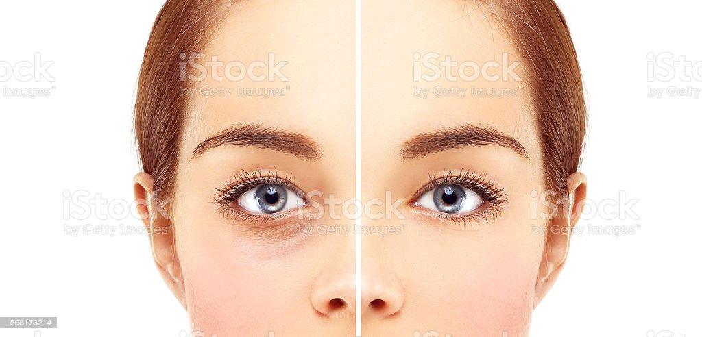 Lower-Eyelid Blepharoplasty stock photo