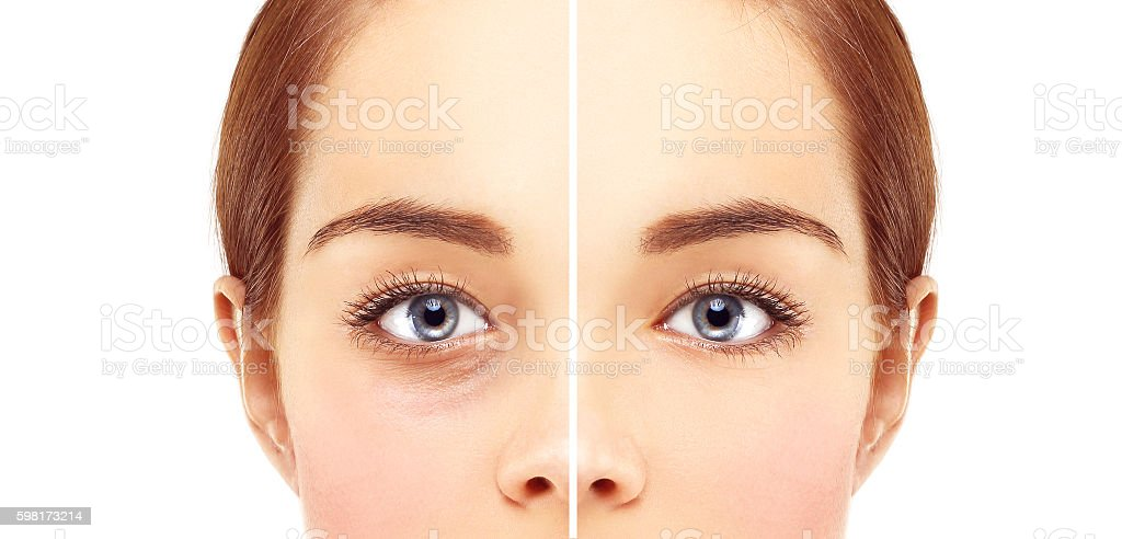 Lower-Eyelid Blepharoplasty stock photo