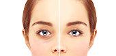Lower-Eyelid Blepharoplasty