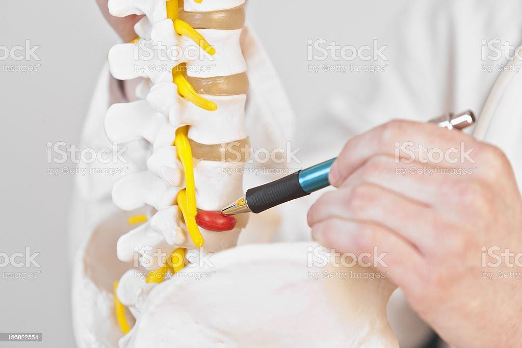 Lumbar disc herniation stock photo