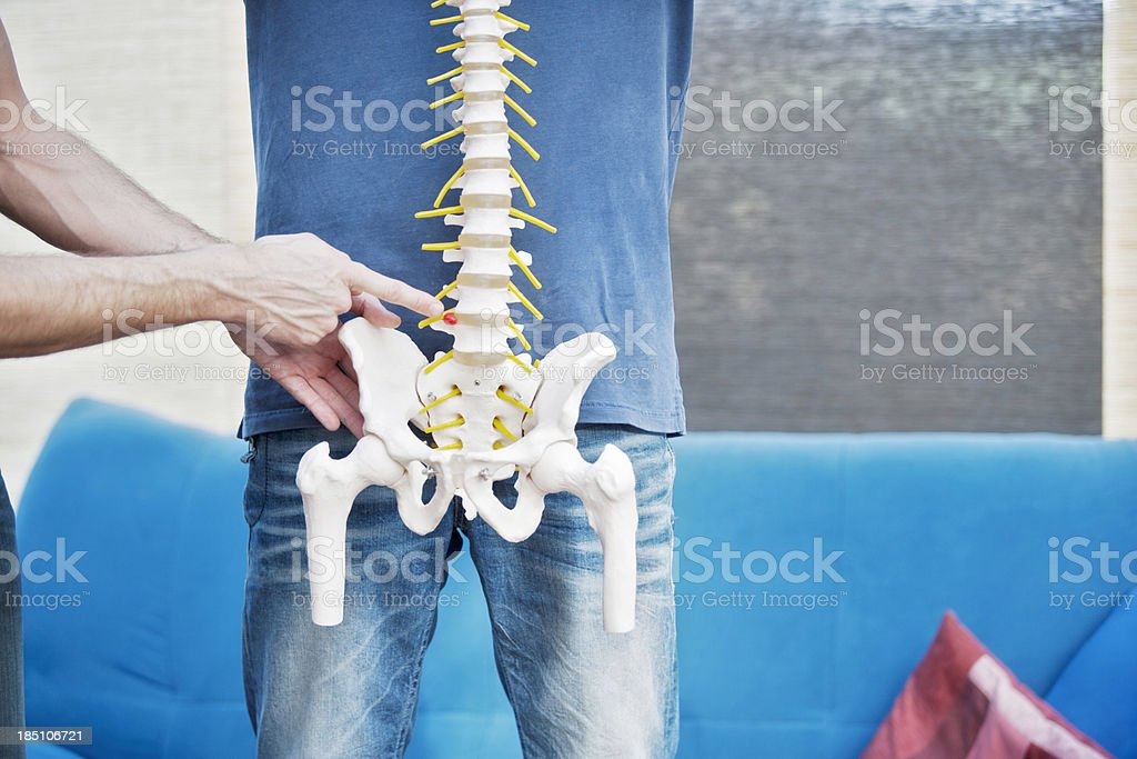 Lumbar herniation stock photo