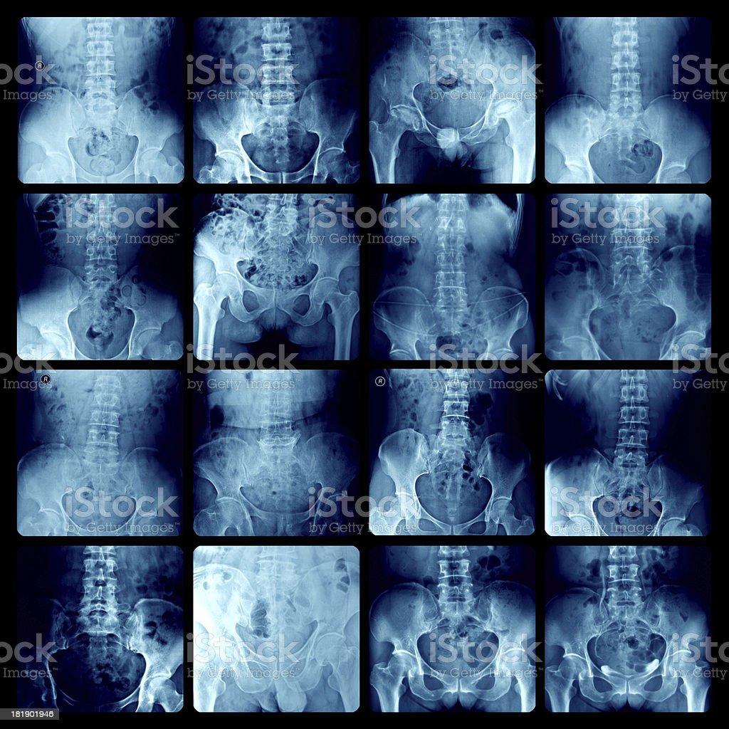 Lumbar vertebrae x-ray stock photo
