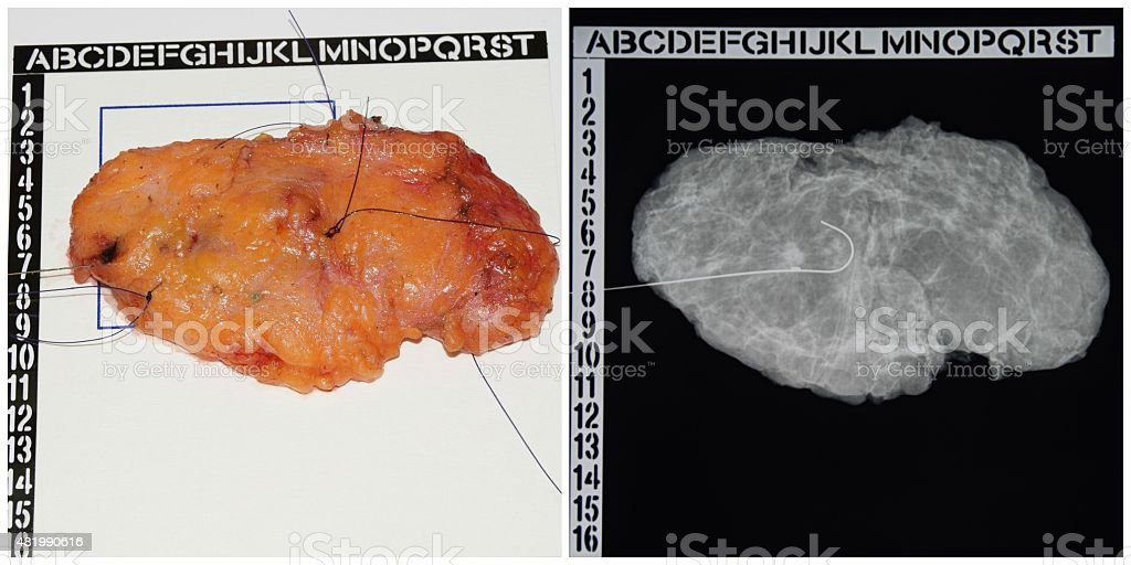 Lumpectomy Specimen with Radiograph stock photo
