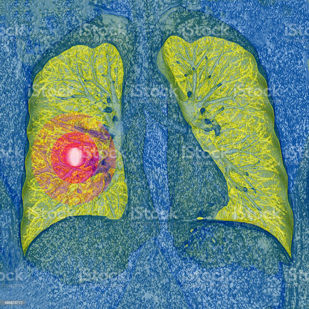 Lung cancer, CT stock photo