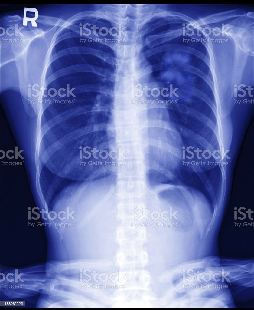 Lung cancer in women stock photo