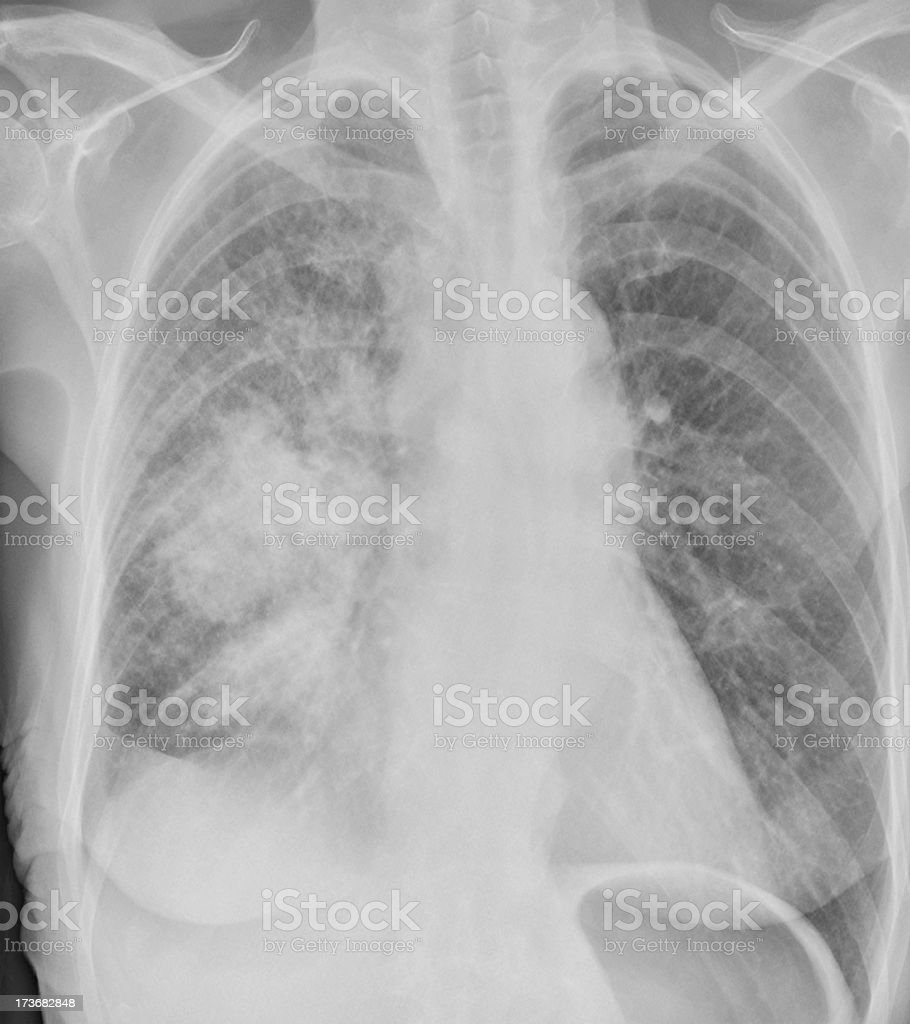 Lung cancer on digital chest x-ray of female smoker royalty-free stock photo
