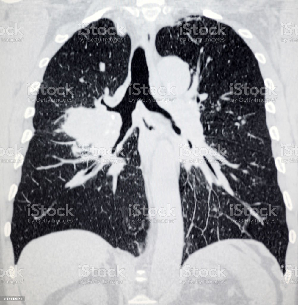 lung cancer thorax CT image stock photo