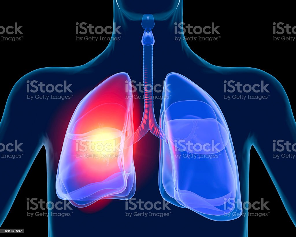 Lung in pain. stock photo