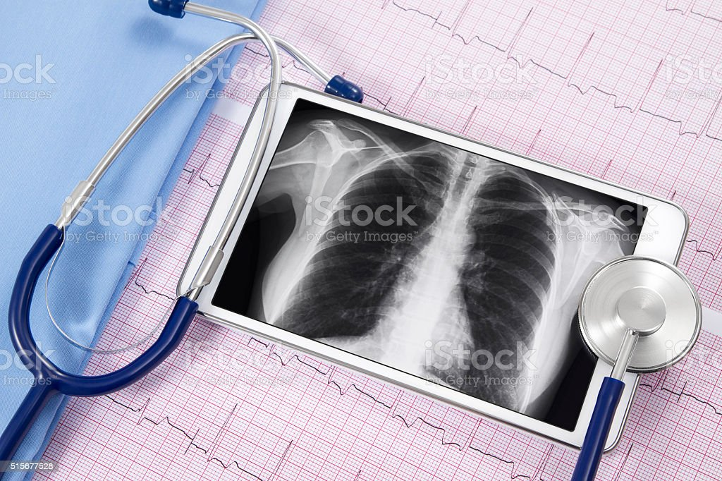 Lung X-ray and Stethoscope with Electrocardiograms stock photo
