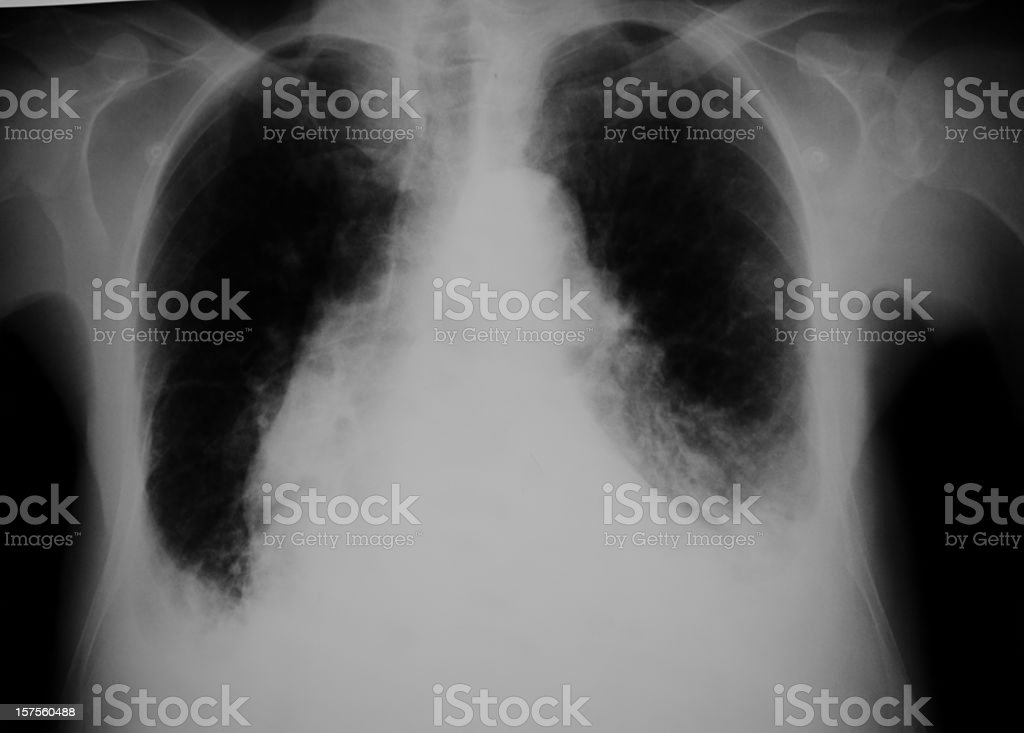lung x-ray of a heart failure stock photo