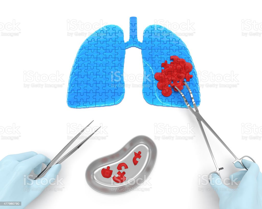 Lungs cancer operation (medicine puzzle concept) stock photo