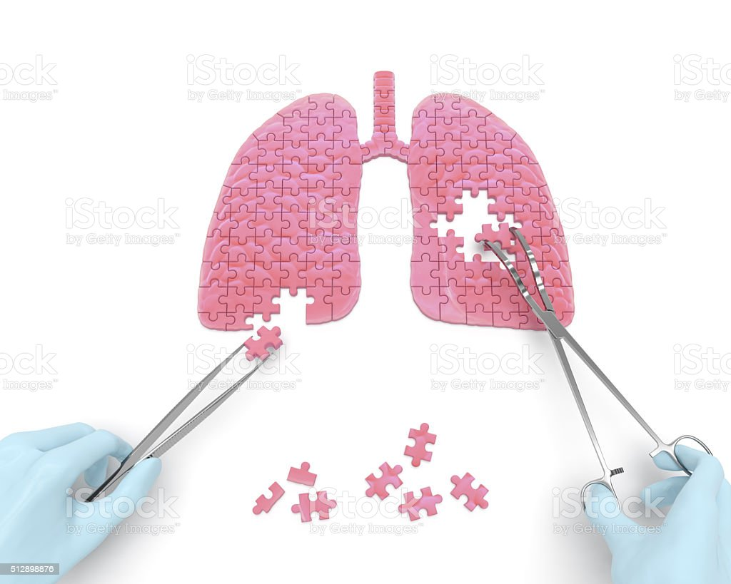 Lungs operation stock photo