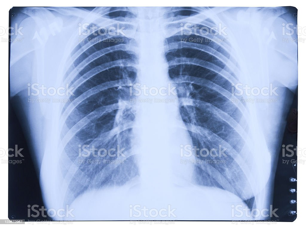 Lungs X-ray Image stock photo