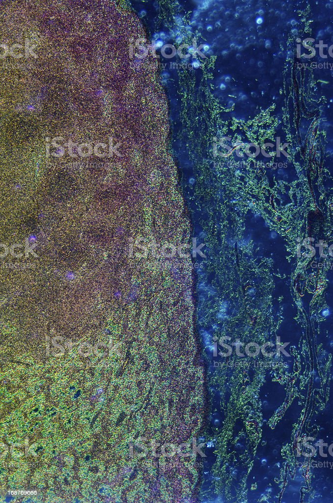 lymph gland tissue royalty-free stock photo