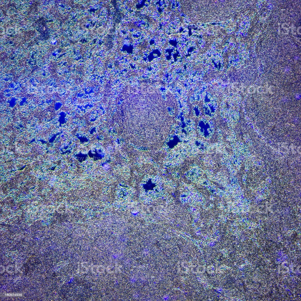 lymph gland tissue royalty-free stock photo