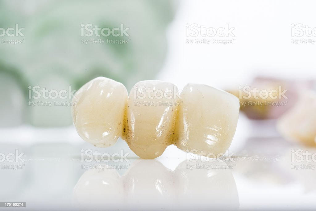 Macro of prosthetic teeth on a white background royalty-free stock photo