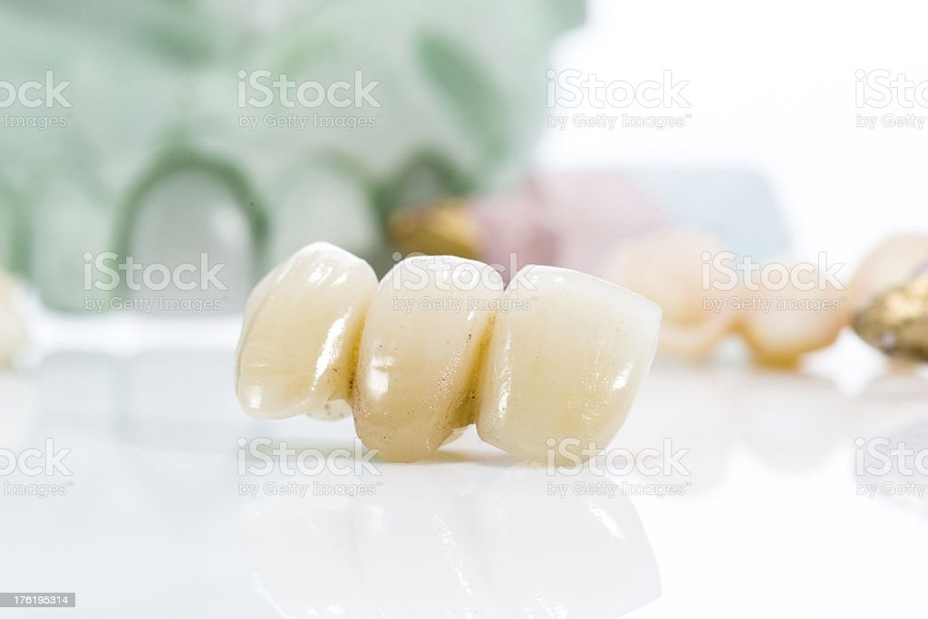 Macro of prosthetic teeth on a white background stock photo