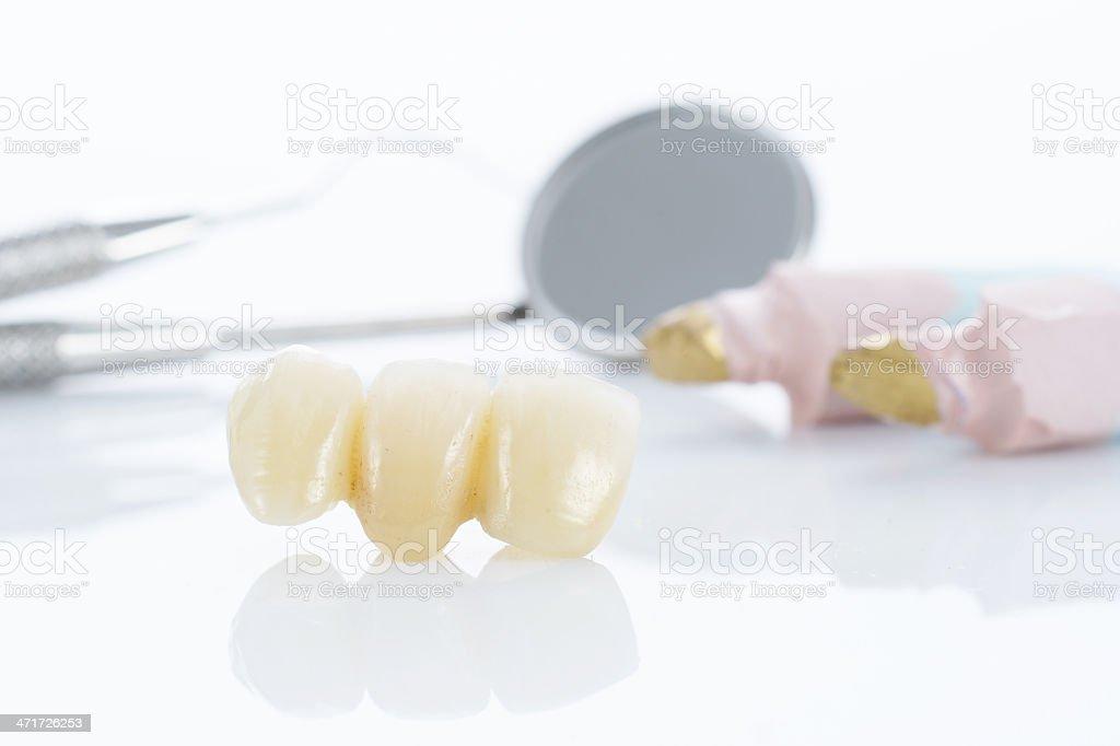 Macro of prosthetic teeth with dental tools royalty-free stock photo