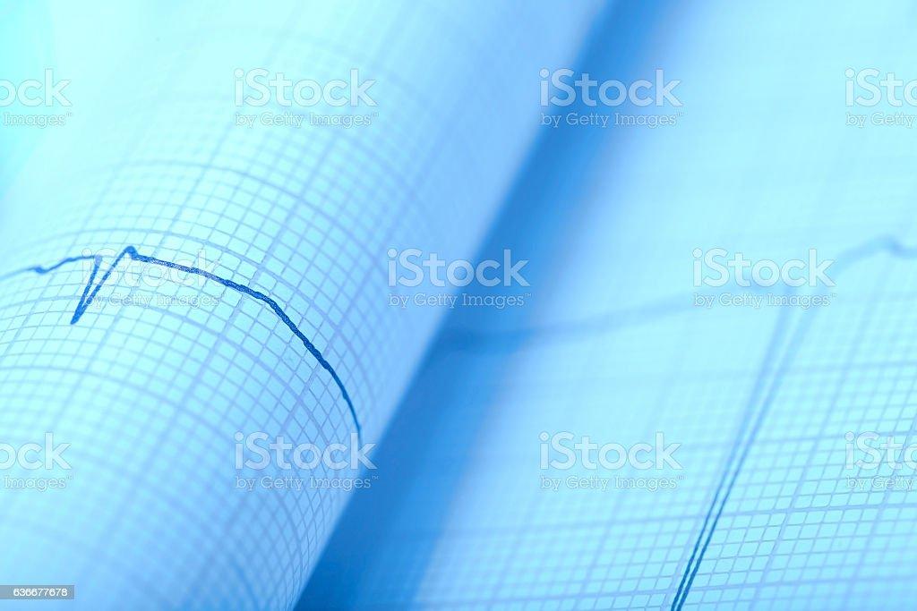 Macro photo of Paper ECG print stock photo