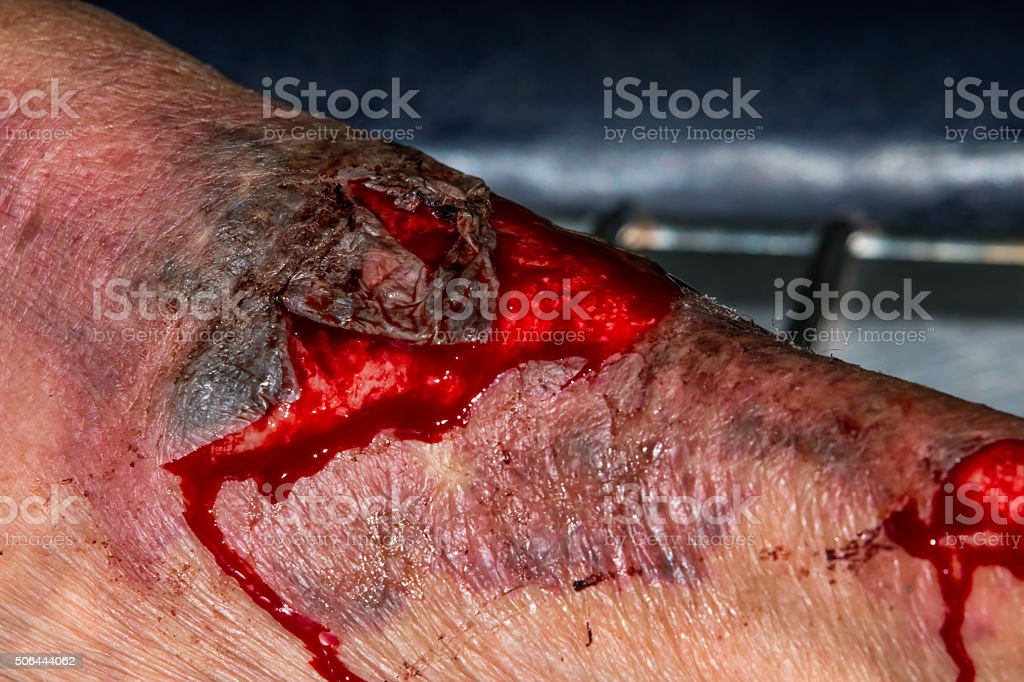 macro shot of a skin scratch stock photo