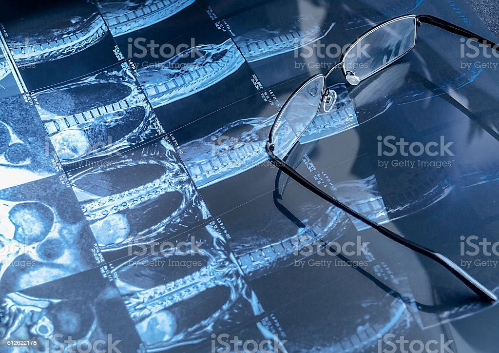 Magnetic resonance imaging and glasses stock photo