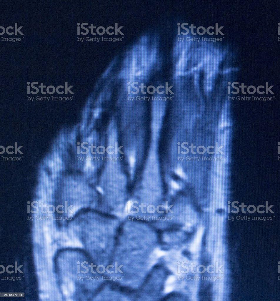MRI magnetic resonance imaging hand finger scan stock photo