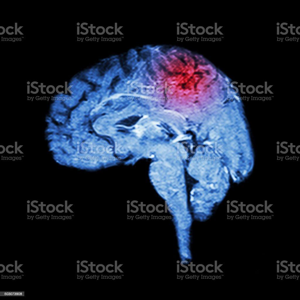 Magnetic Resonance Imaging ( MRI ) of brain and Stroke stock photo