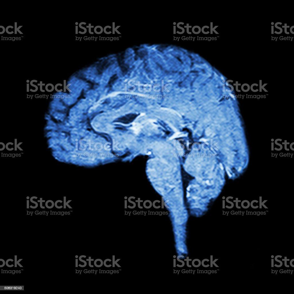 Magnetic Resonance Imaging ( MRI ) of brain stock photo