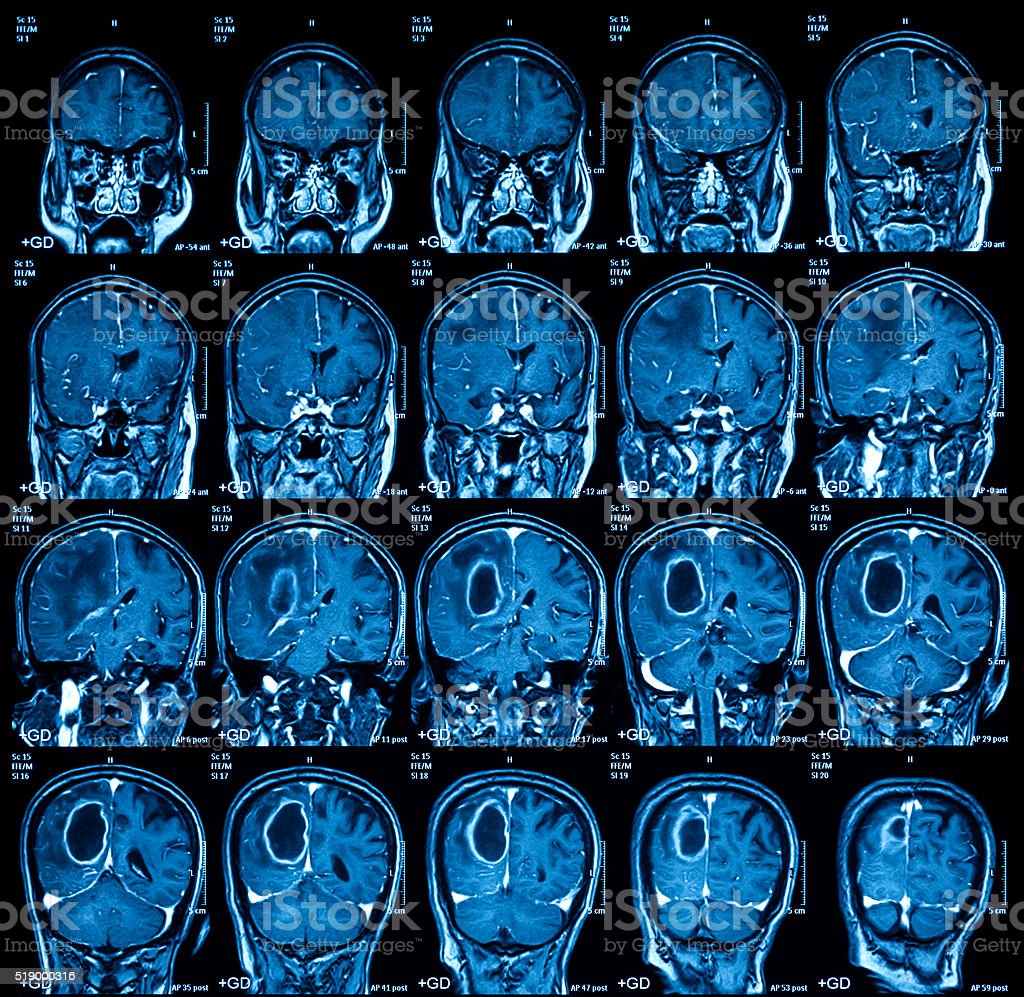Magnetic resonance imaging (MRI) of the brain, brain tumor stock photo