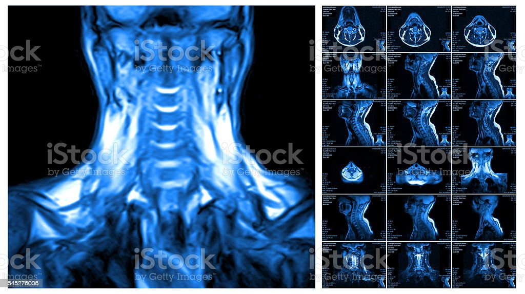 Magnetic resonance imaging of the cervical spine. stock photo