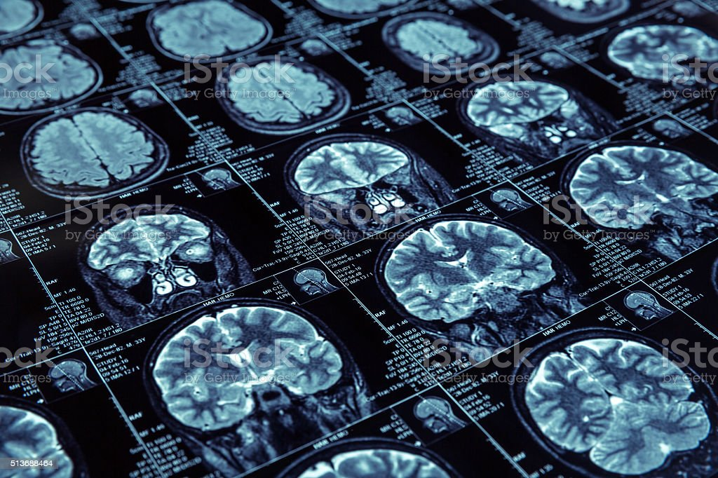 Magnetic resonance imaging stock photo