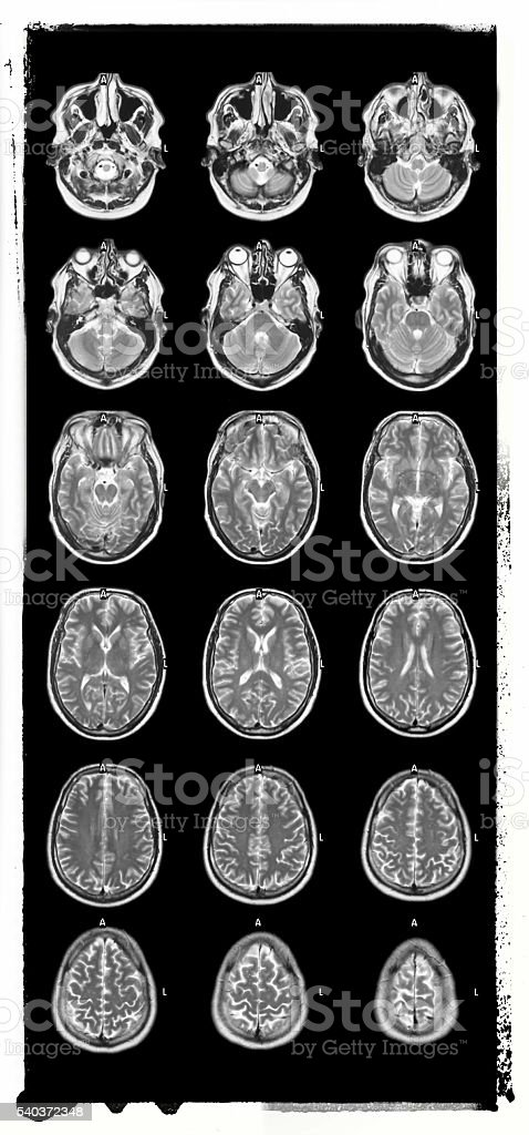Magnetic resonance tomography of Human brain stock photo