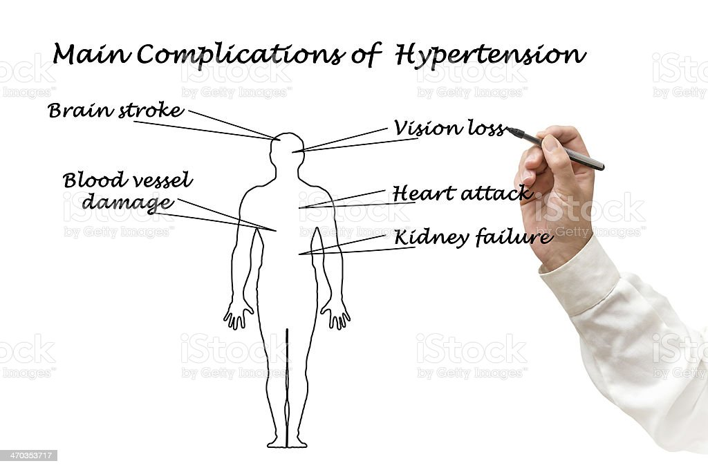 main complications of hypertension royalty-free stock photo