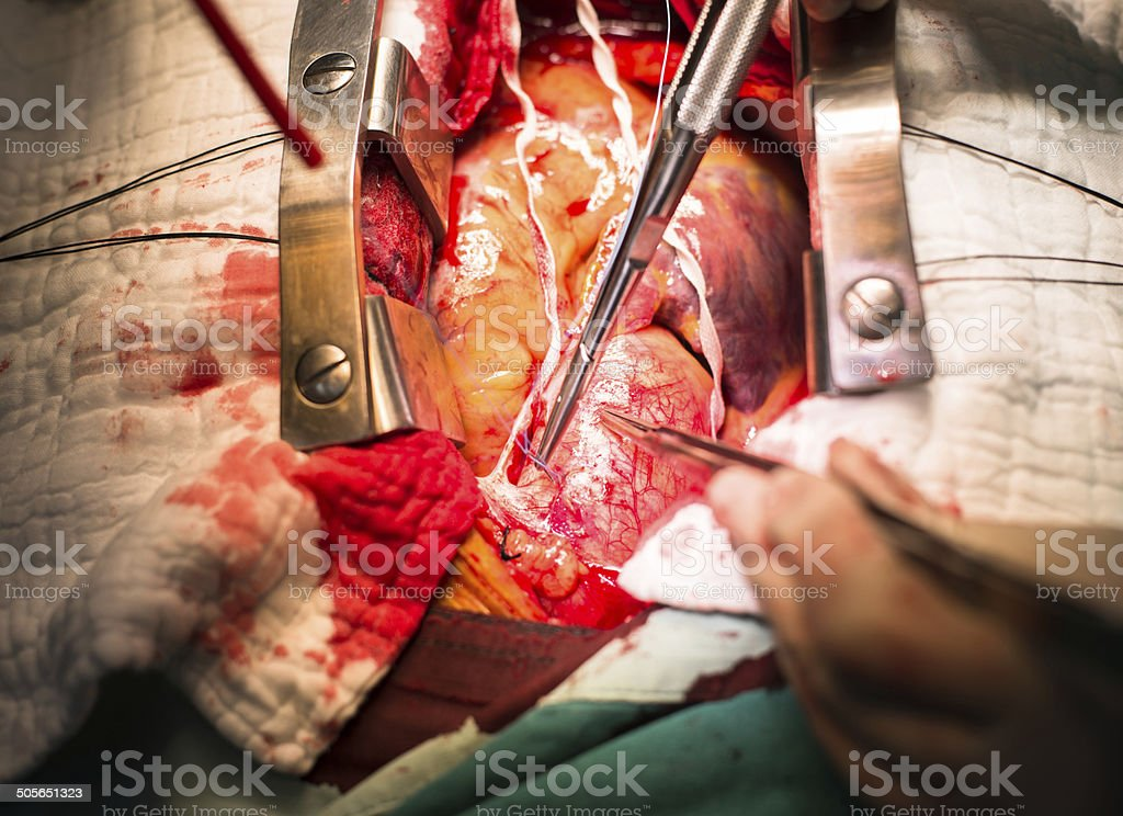 make suture ascending aorta stock photo