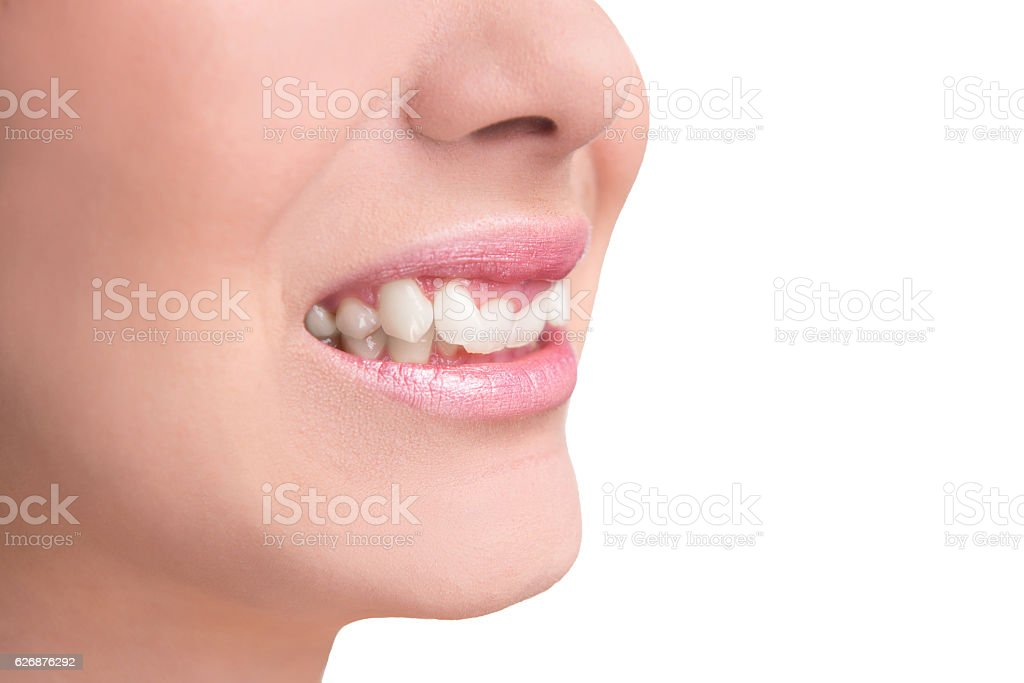 Making perfect smile stock photo