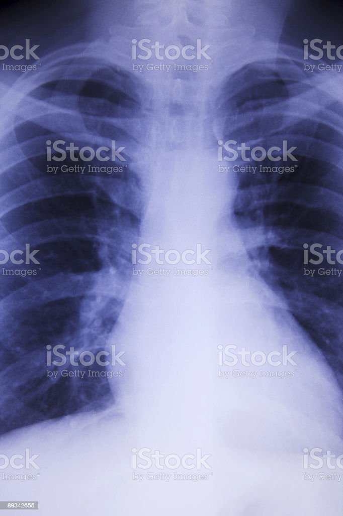 Male chest xray royalty-free stock photo