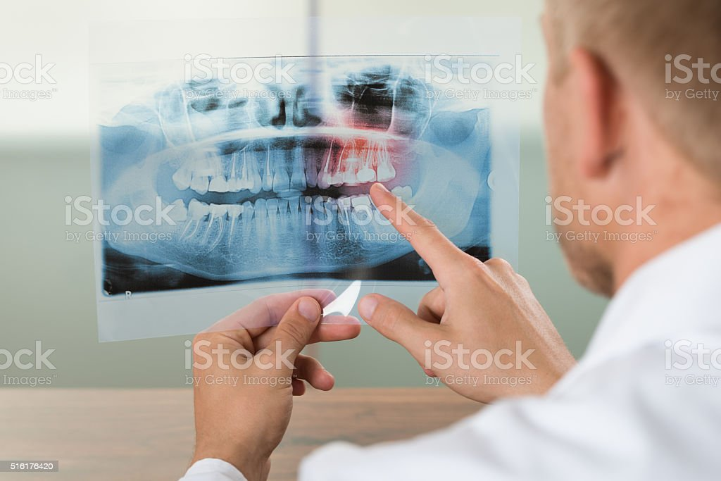 Male Doctor With X-ray stock photo