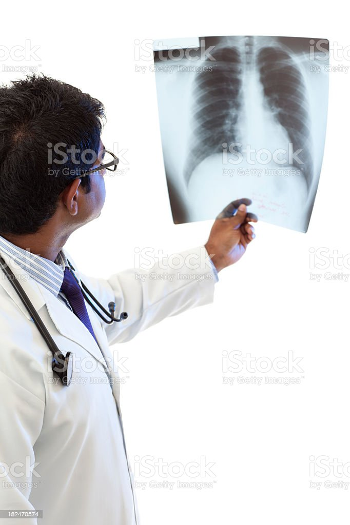 Male Doctor - X-Rays Lungs royalty-free stock photo