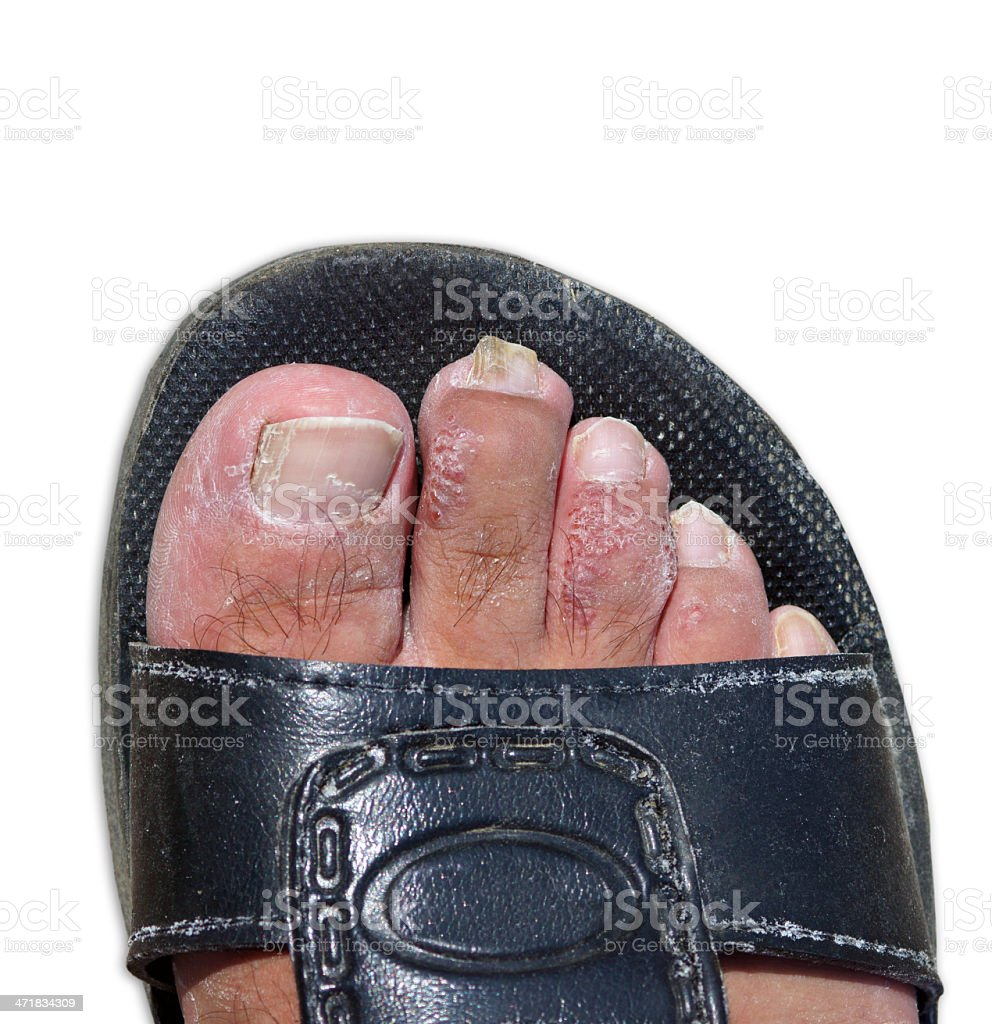male foot with eczema stock photo