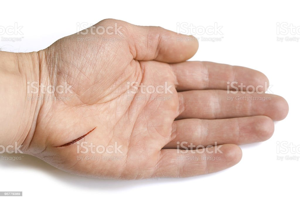 Male hand with wound royalty-free stock photo