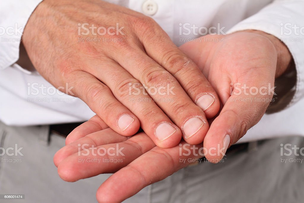 Male hands with dry skin. stock photo