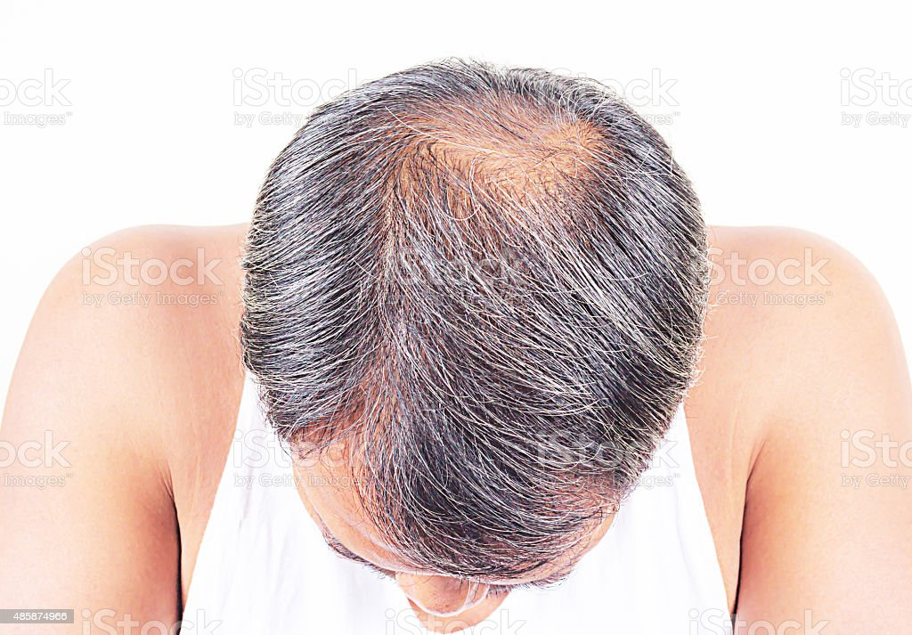 Male head  and grey with hair loss symptoms front stock photo