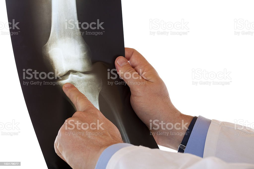 Male medical senior doctor pointing at radiograph x-ray image stock photo