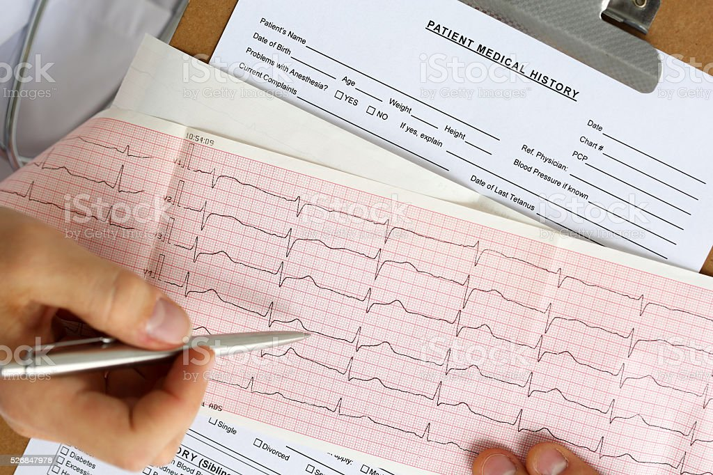 Male medicine doctor hands hold and show to patient cardiogram stock photo