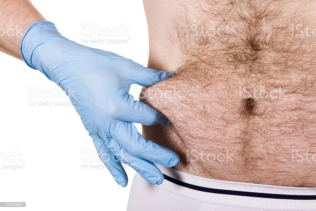 Male mid section pinched before liposuction royalty-free stock photo