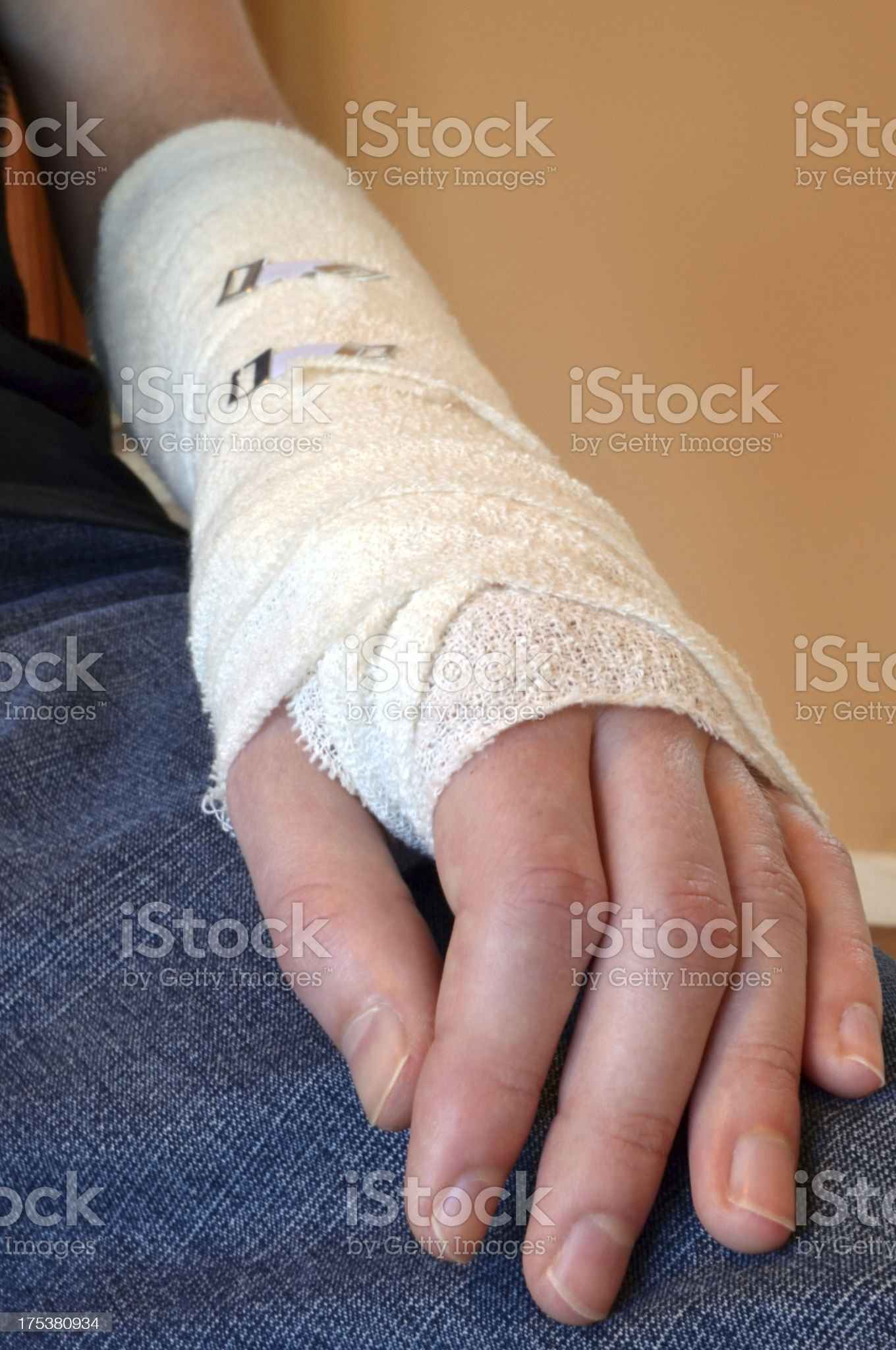 Male with Broken Arm royalty-free stock photo